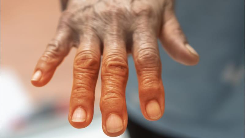 Relación entre la artritis y la diabetes