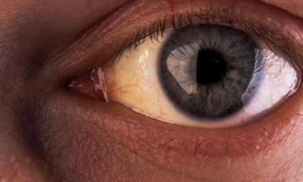 Retinopatía diabética: cómo le afecta la diabetes a la vista