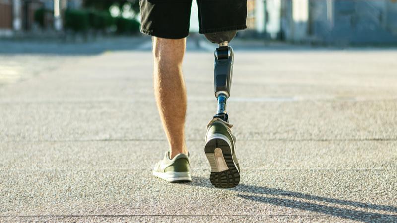 """Diabetes: """"Me amputaron la pierna porque no me atendí mi diabetes tipo 2"""""""
