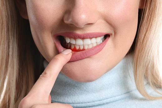 La relación bidireccional entre la diabetes y la periodontitis